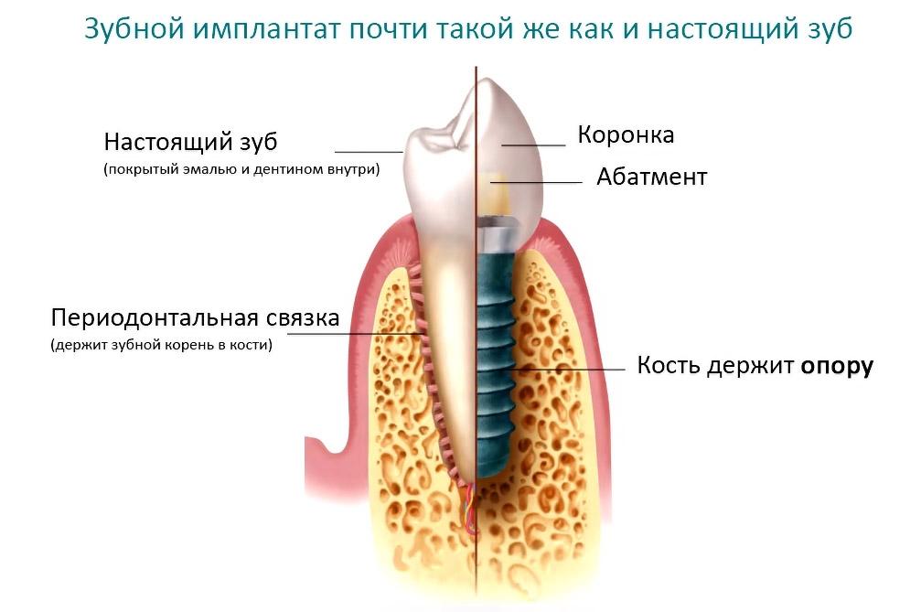Установка имплантов пошагово